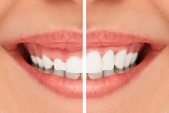 Cosmetic-comparison-smile.jpg