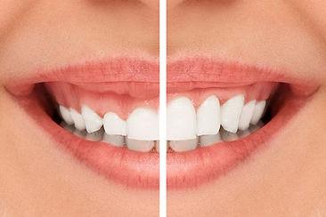 Cosmetic-comparison-smile.jpg