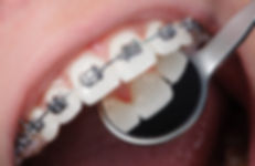 orthodontics-traditional-braces.jpg