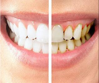 cosmetic-whitening.jpg