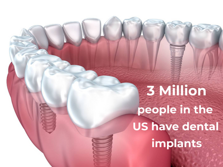 Are Dental Implants Common?
