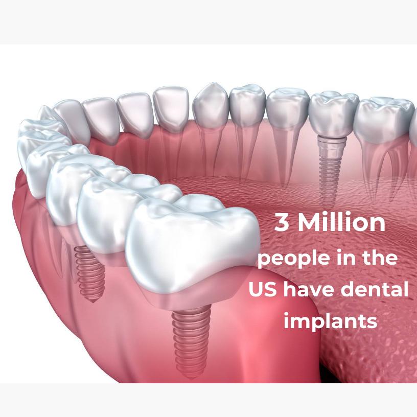 3 million people have dental implants