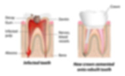 Root-canal-condition-detail.jpg