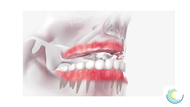 All-On-4 Dental Implants. New Teeth In Just One Day!