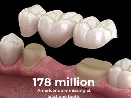 What can I do for a missing tooth?