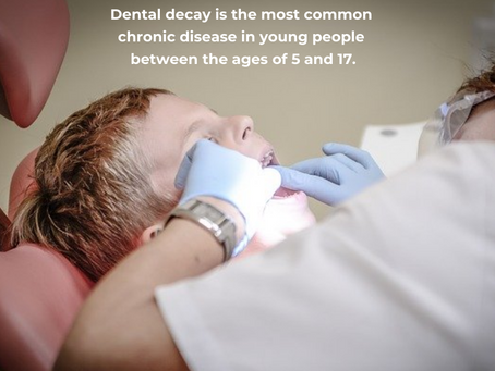 Do kids get tooth decay?