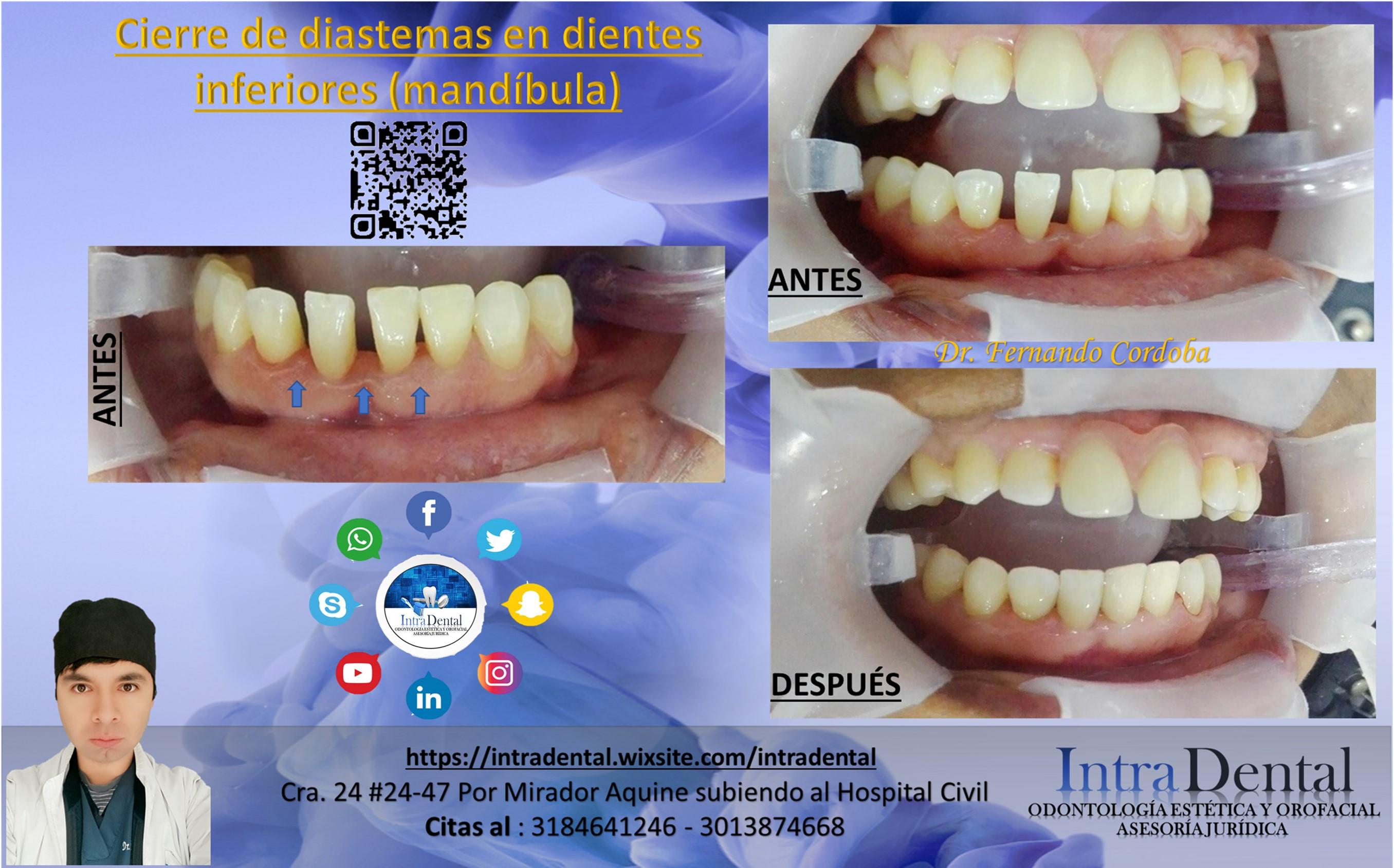 Puentes dentales fijos antes y despues de adelgazar