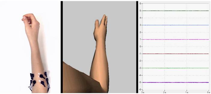 Increasing Control of a Prosthetic Limb.