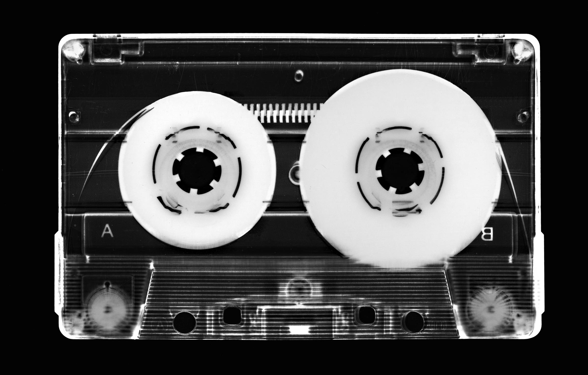 Retro Radiograph