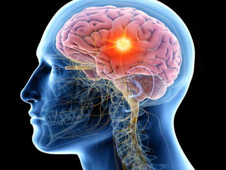 Homeopathy for the brain