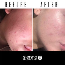 before-after-retinol-serum-katie.jpg