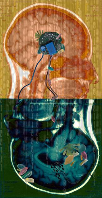 Amalgamated Fragmentation/Plastisphere-Body 3