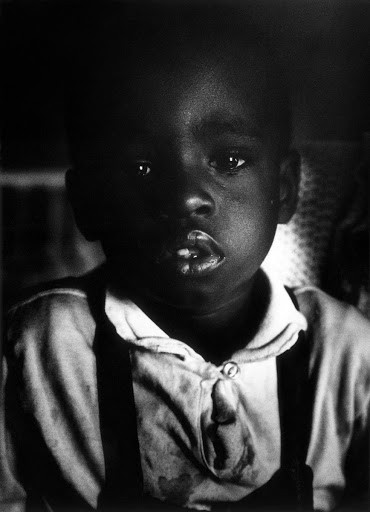 A dark black and white photo of Richard Fontenelle from Gordon Parks' 1967 photo essay, A Harlem Family. The photo essay was published in LIFE magazine. Richard's lips are cracked from eating the plaster to stave off hunger.