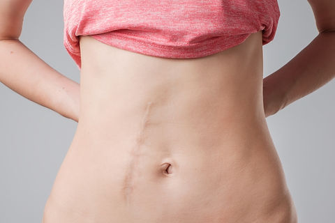 European woman with long abdominal scars