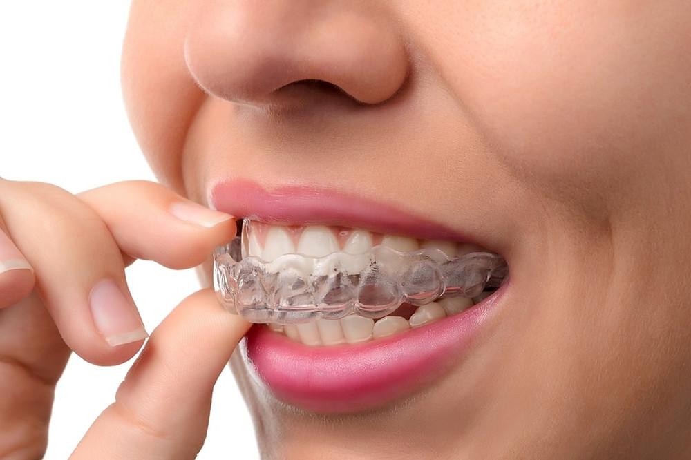 Alinhador Transparente, Dentista em Canoas