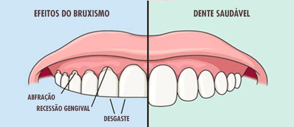 Dentista em Canoas