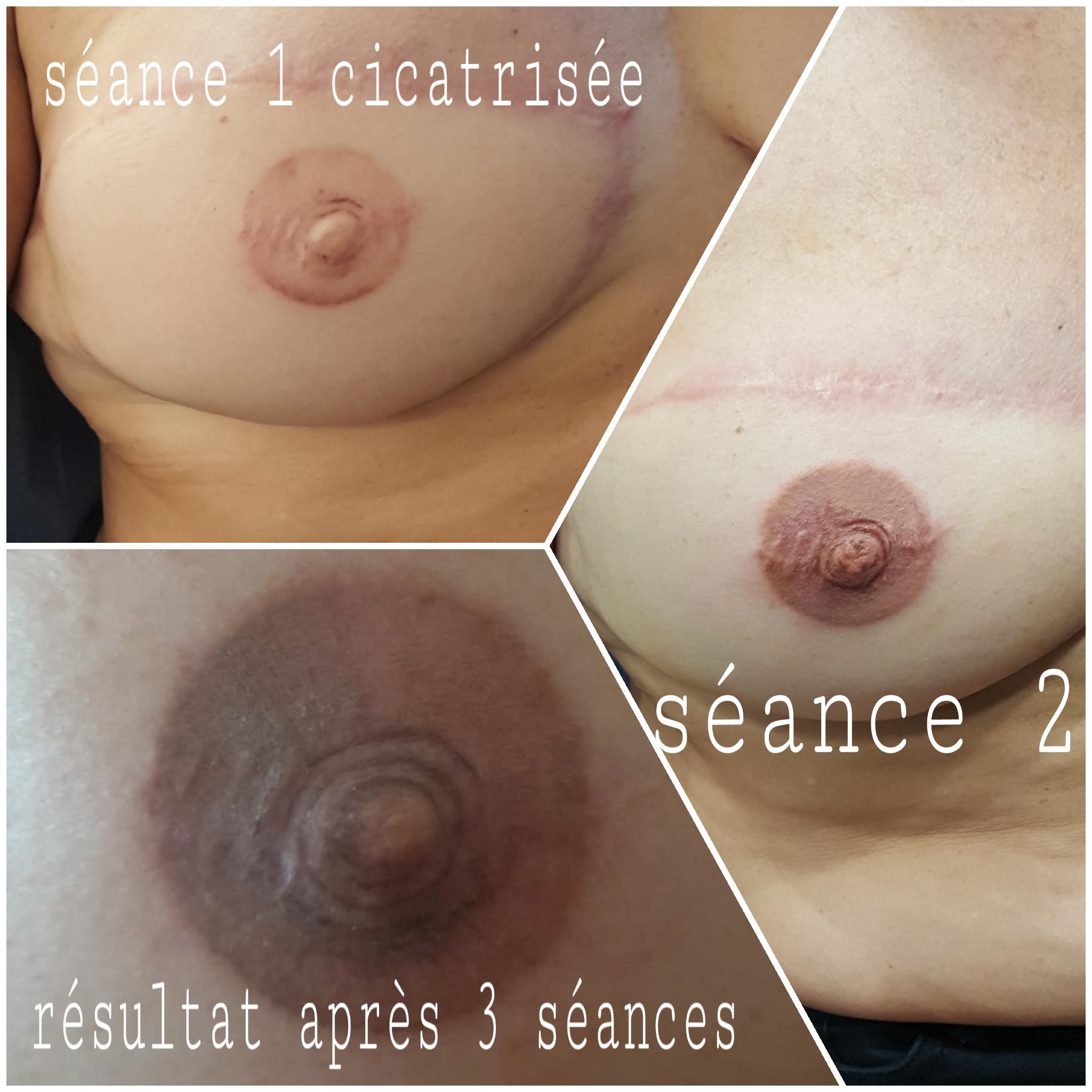 création aréole mammaire