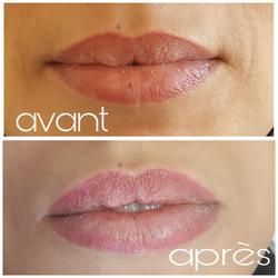 Candy lips/bouche 3D