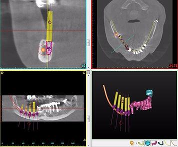 Implant, dentiste, cabinet dentaire, implantologiste, sathonay, lyon, blanchiment