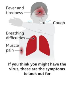 武漢肺炎(新冠疫情)症狀