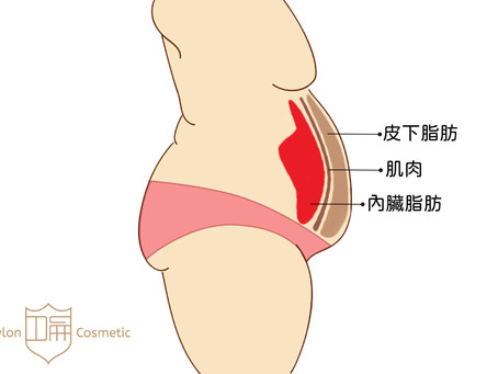 腹部肥胖不單純!