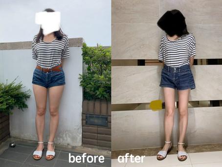 精雕曲線美腿,掰掰粗勇大腿~大腿環抽術後分享