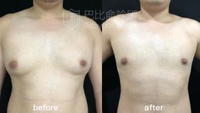 男性也有胸部困擾?男性女乳症見證分享