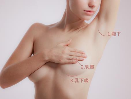 隆乳切口與植入位置大評比