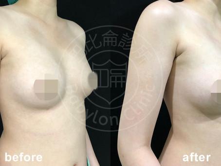脂肪乾坤大挪移~手臂大腿抽脂+自體脂肪豐胸案例分享