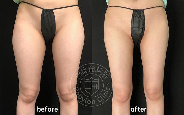 大腿環抽術前術後照2.jpg