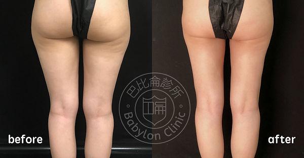 大腿環抽術前術後照3.jpg