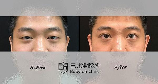 雙眼皮+提眼肌中度眼瞼下垂.jpg