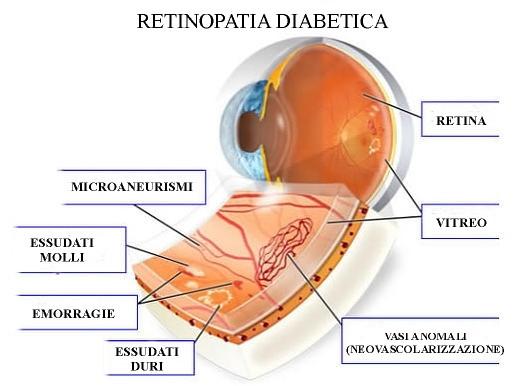 retinopatia diabetica.jpg