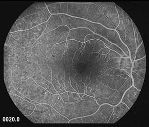 Fluorangiografia Retinica