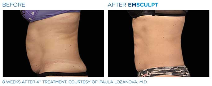 emsculpt-before-after-7.jpg