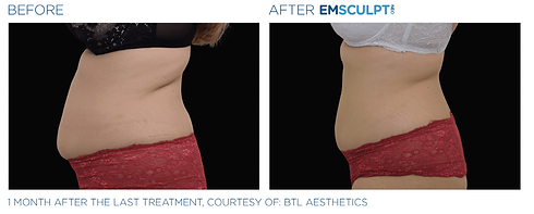 emsculpt-neo-before-after-2.png