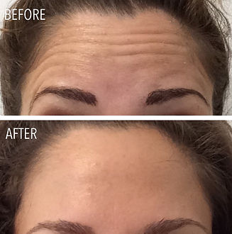 olivia-before-after-forehead-botox-maine