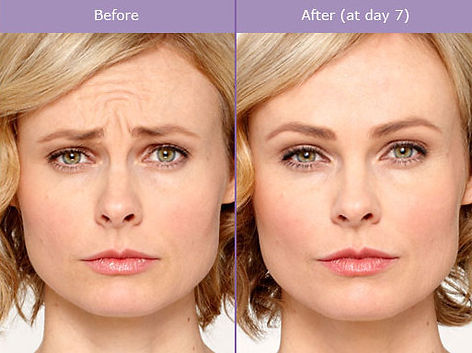 botox-before-after (1).jpg