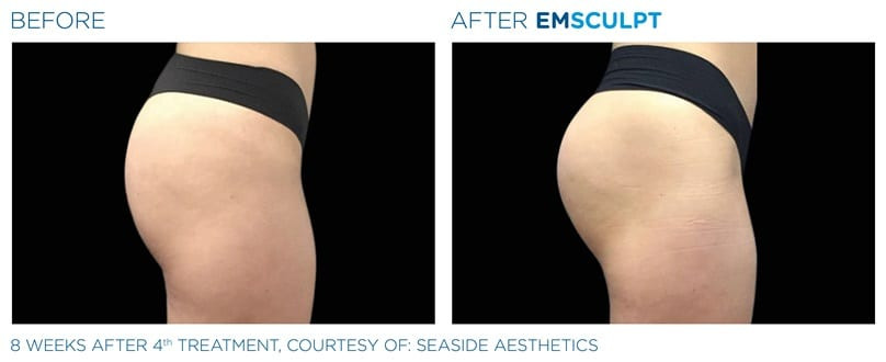 emsculpt-before-and-after-buttocks.jpg