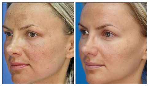 IPL-before-and-after.jpg