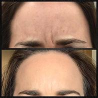 20190610-botox-between-eyebrows-lg.jpg
