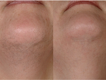 chin-laser-hair-removal-miami.png