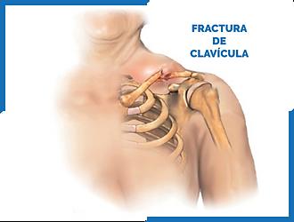 FRACTURA_CLAVÍCULA.png