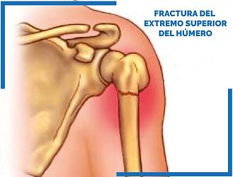 Fractura_del_extremo_superior_del_húmer