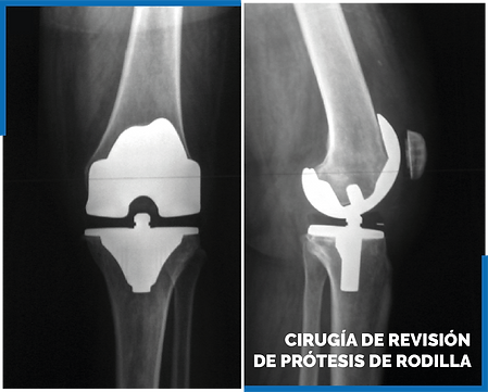 cirugia de revision de protesis de rodil