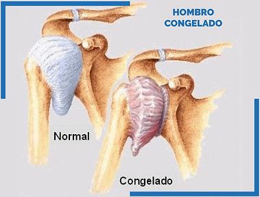 HOMBRO CONGELADO_Mesa de trabajo 1.jpg