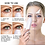 Thumbnail: Anti Aging Eye Care Therapy