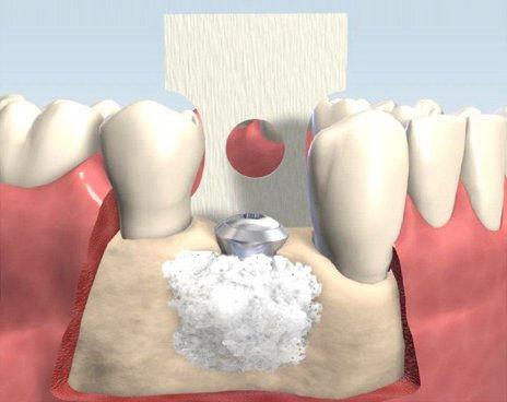 Injerto de hueso o relleno óseo