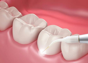 Eliminación de la periodontitis sin cirugía
