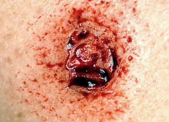 Prosthetic Mold #3
